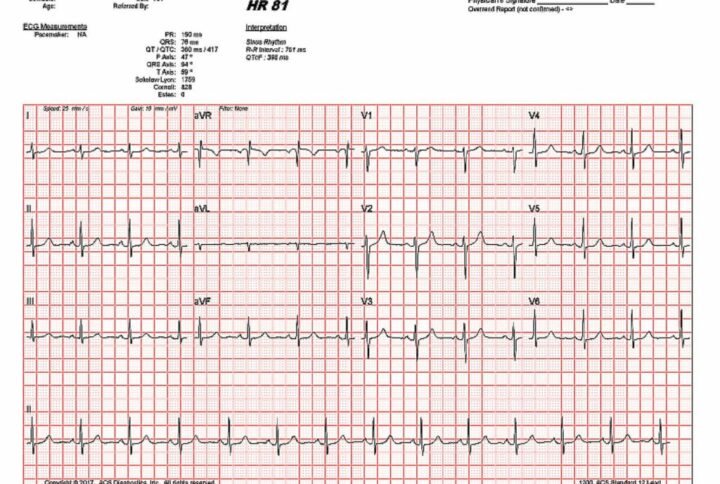 QT Prolongation Monitoring for COVID-19 Patients Now Available