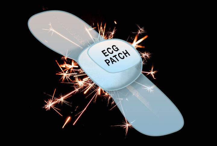 ECG Patch Technology, A Flash in the Pan?